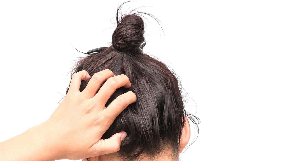 8 Merk Obat Penghilang Kutu Rambut Yang Bagus Dan Ampuh